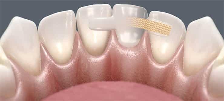 Adhezivni mostovi za prednje zube