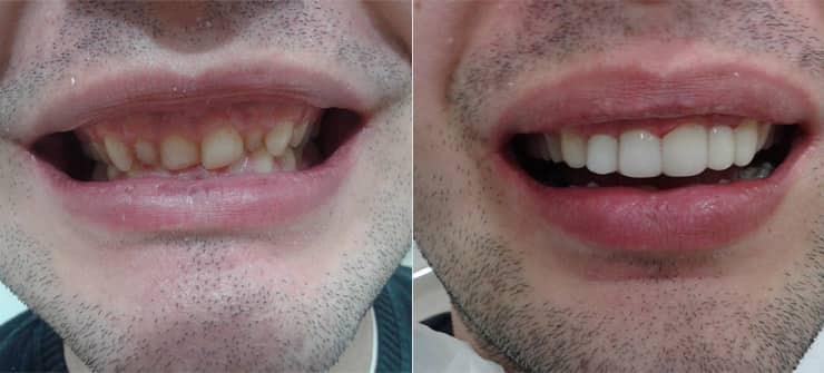Kako izbeleti zube