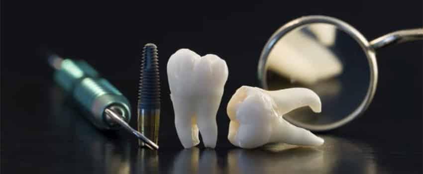 Oralna hirurgija - Stomatoloska ordinacija kolmident